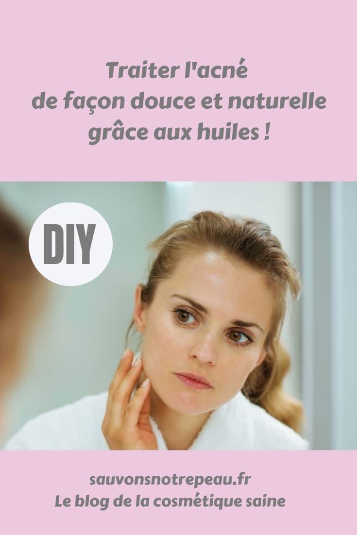 Traiter l'acné de façon douce et naturelle grâce aux huiles !