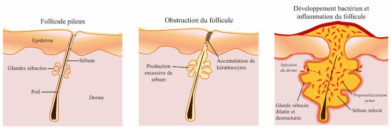 Schéma de l'inflammation d'un microkyste